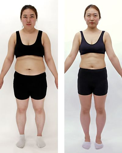 """""""Dank HYPOXI habe ich es letztendlich geschafft abzunehmen"""" Hye Yeon Jung (28), Südkorea. """"Ich habe bereits viele Diäten versucht und bin jedesmal damit gescheitert. Dank der HYPOXI-Methode habe ich es letztendlich geschafft, Gewicht zu verlieren und abzunehmen. Einige Jungs haben mich bereits eingeladen.     13,1 kg Gewichtsverlust  97,7 cm Umfangverlust 2 Monate HYPOXI-Training"""