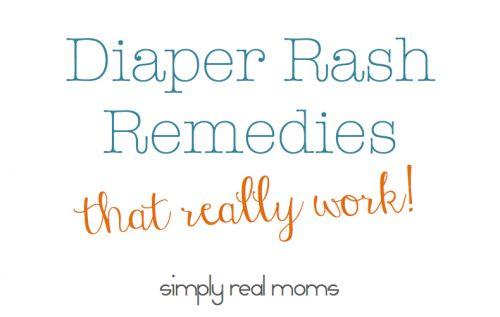The best list of diaper rash remedies!