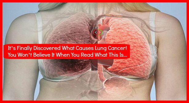 IT'S FINALLY DISCOVERED WHAT CAUSES LUNG CANCER! YOU WON'T BELIEVE IT WHEN YOU READ WHAT THIS IS ABOUT! - World Health Info