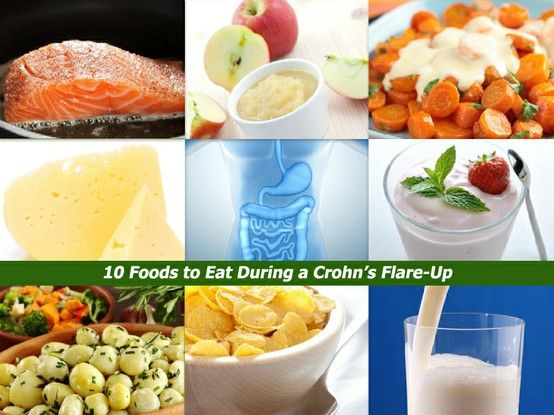 Crohn's Food List: 10 Foods to Eat During a Flare-Up | Crohn's