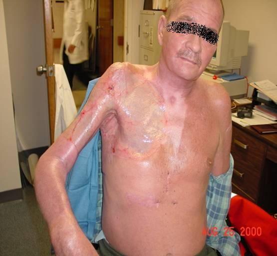 Les accros à la meth continuent de s'immoler pour la défonce   VICE