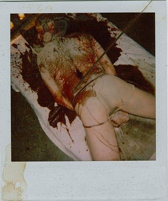 Poloroid photograph taken by Dennis Nilsen  of one of his victims