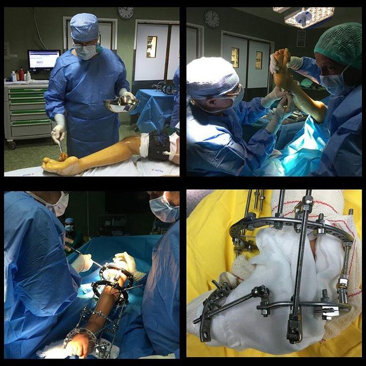 """60 Gostos, 2 Comentários - Nuno Craveiro Lopes (@nunocraveirolopes) no Instagram: """"Ontem, no Hospital Cruz Vermelha Portuguesa em Lisboa, cirurgia para corrigir um pé e perna…"""""""