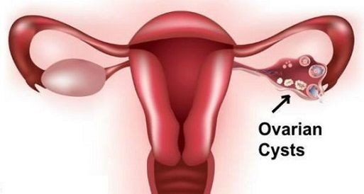 Be Aware! Early Signs Of Ovarian Cysts That Most Women Mistakenly Ignore