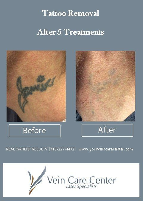 If you're experiencing a serious case of tattoo remorse, and you want the most powerful state-of-the-art laser tattoo removal, for all colors, in fewer sessions, then the Vein Care Center in Lima, OH has got the solution for you. We...