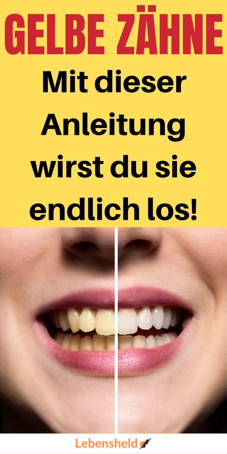 Tipps Gegen Gelbe Zähne