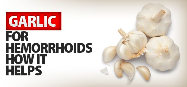 Garlic For Hemorrhoid Treatment
