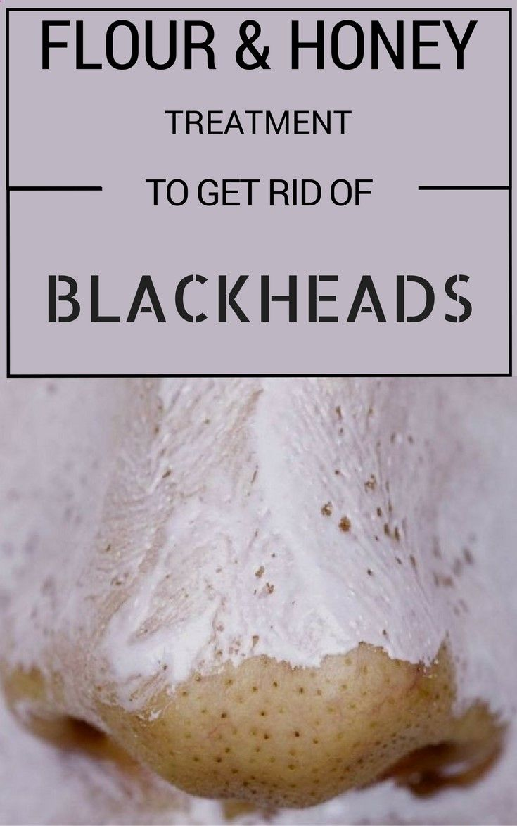 Flour And Honey Treatment To Get Rid Of Blackheads