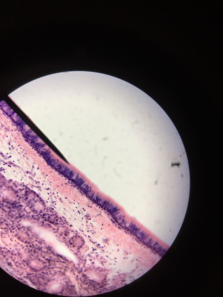organ - trachea ; pointer - cilia ; pseudostratified ciliated columnar epithelium