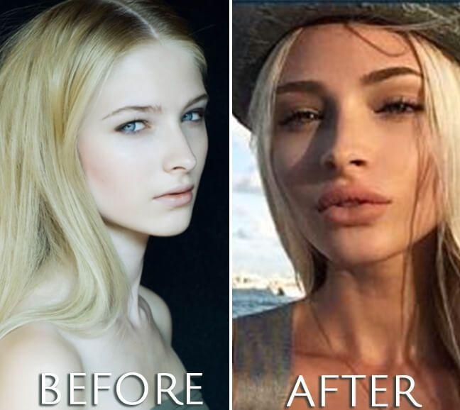 Alena Shishkova plastic surgery before and after photo Alena Shishkova plastic s…