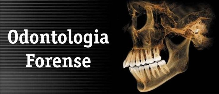 odontologia forense - Google Search