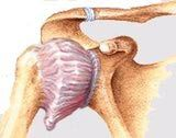 Frozen shoulder causes pain and stiffness of the shoulder.