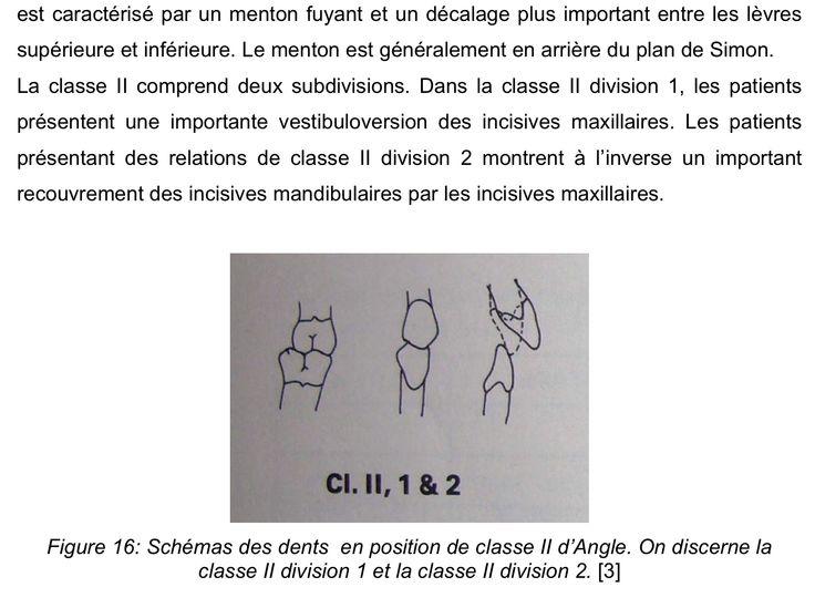 En classe II (suite)