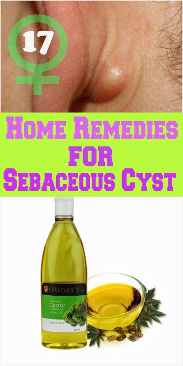 17 remèdes maison pour Kyste sébacé