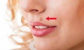 como quitar las verrugas