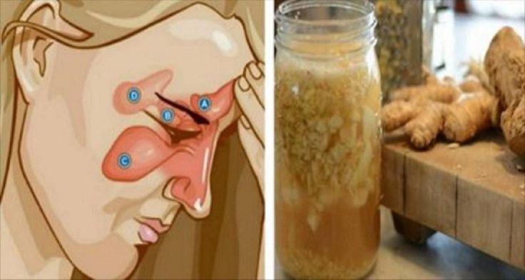 Un remedio para la sinusitis, las flemas, la gripe, rinitis...