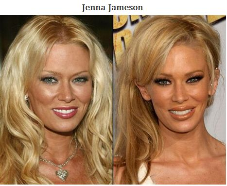When Celebrities Reveal Mommy Makeover Results | Celebs ...