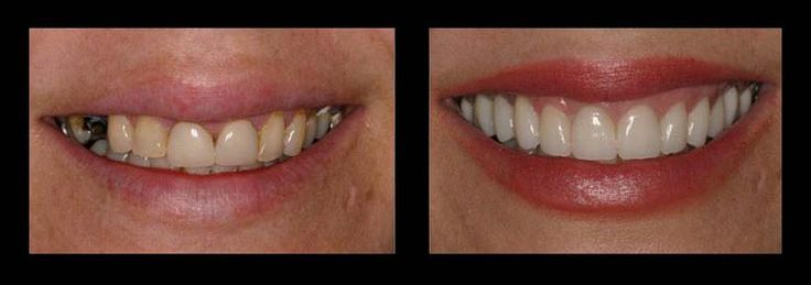 How Much Do Veneers Cost ?