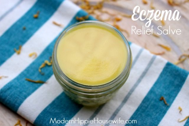 This homemade eczema relief salve is a safe and natural approach, and is used to soothe the uncomfortable, itching, redness and pain caused by eczema.