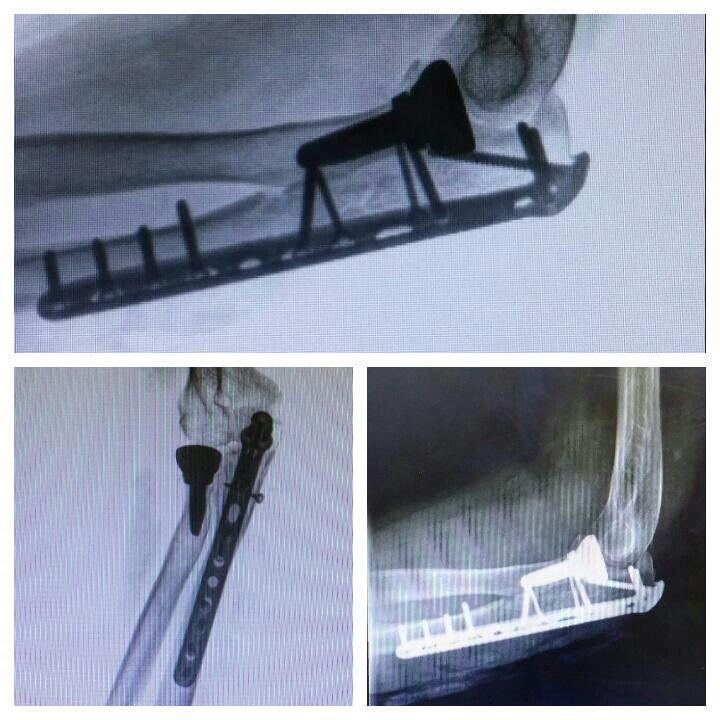 58a  fractura compleja del olecranon y cupula radial. Cx reduccion + osteosintesis y protesis de cupula radial