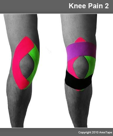www.acupuncture-sales.com en products-mainmenu-64 15-kinesiology-tapes 115-ares-kinesiology-tapes-how-it-works 121-lower-limbs-1.html