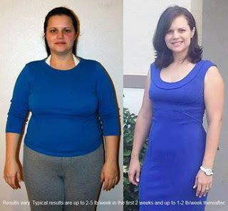 Weight loss surgery orange county ca photo 8
