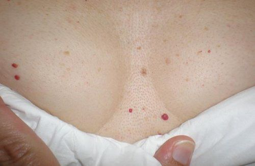Pontos vermelhos na pele