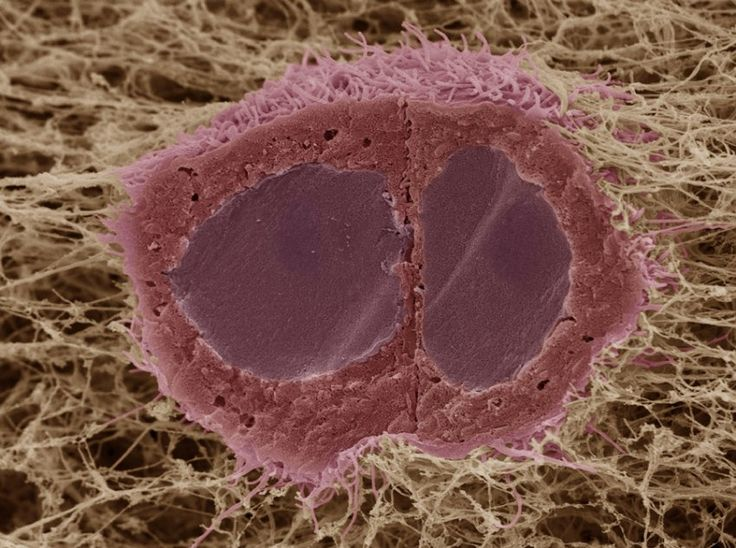 Image of the Month: October   EACR - European Association for Cancer Research