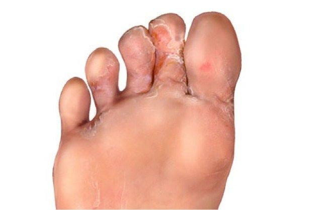 Οι μύκητες στο δέρμα είναι ένα πολύ συχνό πρόβλημα που χωρίς σωστή αντιμετώπιση μπορεί να σας ταλαιπωρεί για πολλούς μήνες. Όλοι οι άνθρωποι κάποια στιγμή θα αντιμετωπίσουν πρόβλημα μυκητίασης. Με …
