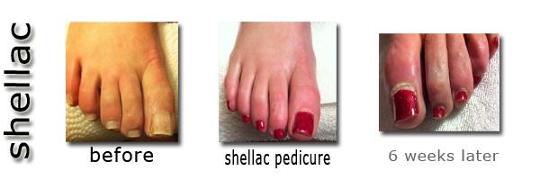 Shellac Before And After Pictures Pedicure Regina Cg Nail Salon Esthetique Studio Nails Gel Pinterest