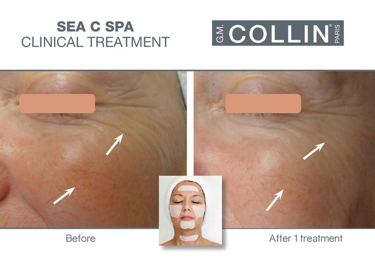 G.M. Collin Sea C Spa - Before & After picture #beauty #cosmetics #skincare #clinical #clinicaltreatment #spa #spatreatment #antiaging #finelines #wrinkles #SeaCSpa #gmcollin #gmcollinparis #gmcollinskincare