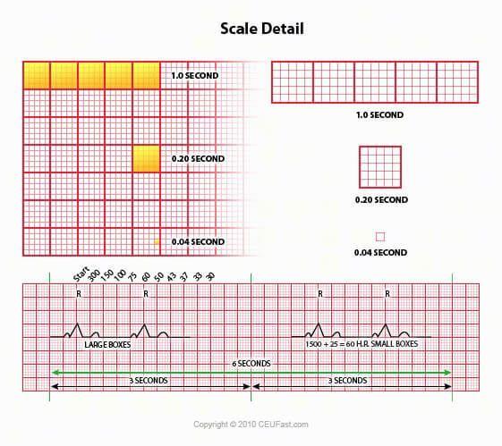 EKG, ECG Interpretation Course