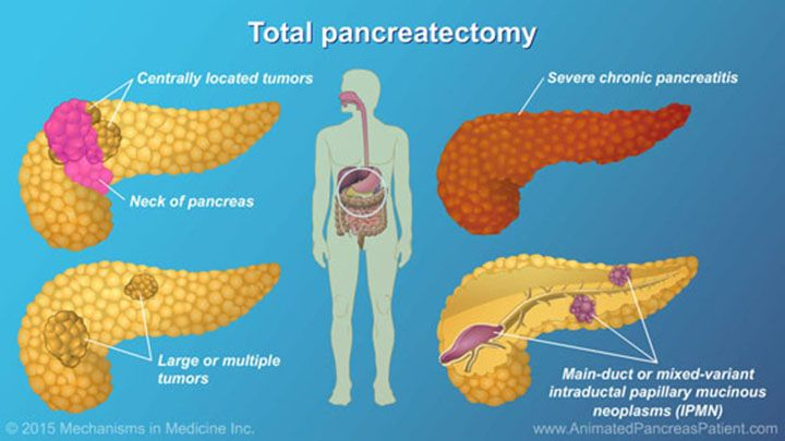 A total pancreatectomy is used when the entire pancreas must be removed. This includes several scenarios such as: Centrally located tumors in the neck of the pancreas and large or multiple tumors, severe chronic pancreatitis, and certain cystic diseases such as main-duct or mixed-variant intraductal papillary mucinous neoplasm (IPMN).slide show: understanding pancreatic surgery: benefits, risks, and relevant anatomy. this slide show describes the major indications for pancreatic surgery, as…