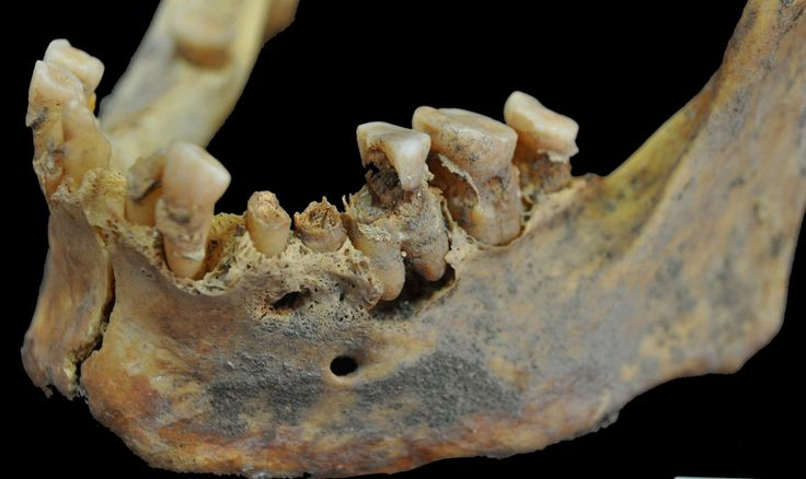 Patterns of oral health can be studied to gauge the structures of ancient diets. In this case, very destructive dental caries, abscesses, and plaque (or dental calculus) are each consistent with a diet containing extensive sugary carbohydrates. (Photo by Haagen Klaus)