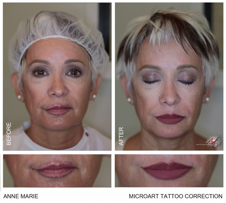 Beforeafter semi permanent makeup is used to correct past