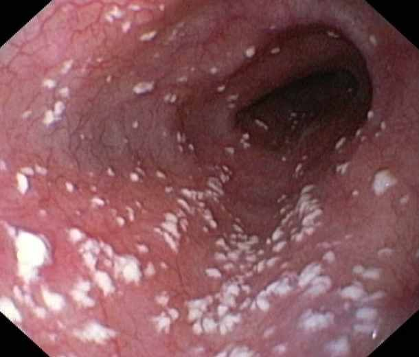 This is a photo of Candida overgrowth in the intestines… ICK! Read the article to find out what is Candida, how do you know you have it, and what to do about it.