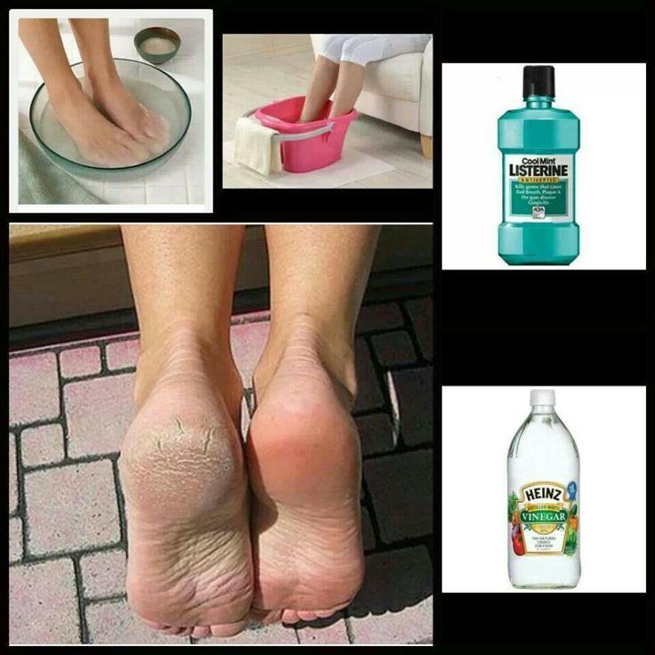 En agua calientita o tibia añada media taza de Listerine y media taza de vinagre blanco. Sumerja los pies (deben quedar tapados más arriba de los talones) y déjelos 15 minutos.  Si después de ese tiempo no ve buenos resultados déjelos 15 minutos más. Algunos pies requieren del uso de lima para eliminar la piel muerta.