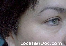 10 best images about tattoo removal on pinterest medical for Tattoo removal in kansas