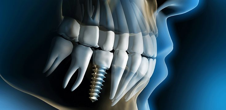 What is Dental Implant Therapy ?  An implant can be a magnificent replacement for an individual who has lost a tooth due to periodontal disease, injury or extraction. learn more at #TMIKY  Dental Assistant Bowling Green 42101 2016 944 Fields Dr. Suite 103 Bowling Green, KY 42104