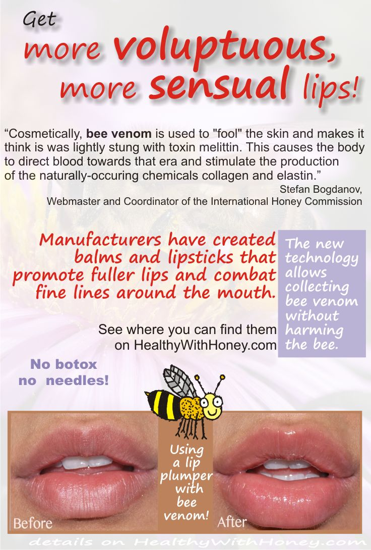 Get more voluptuous lips, be more sensual! Use a lip balm with bee venom and make a difference!   http://healthywithhoney.com/what-is-the-best-cream-for-wrinkles/  #lips #lipstick #sensual