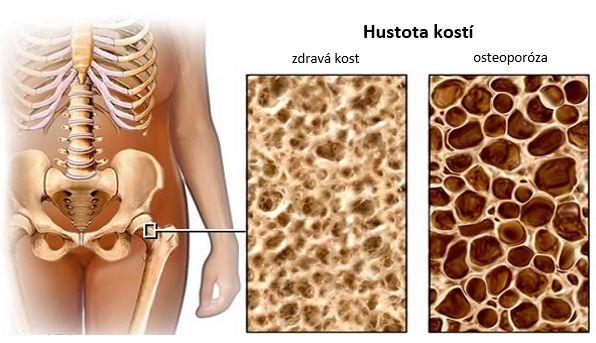 osteoporóza_main