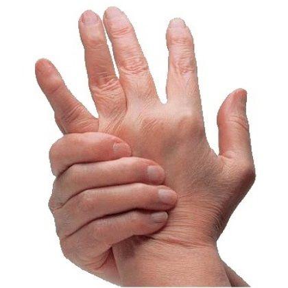 Various Severe Arthritis Symptoms