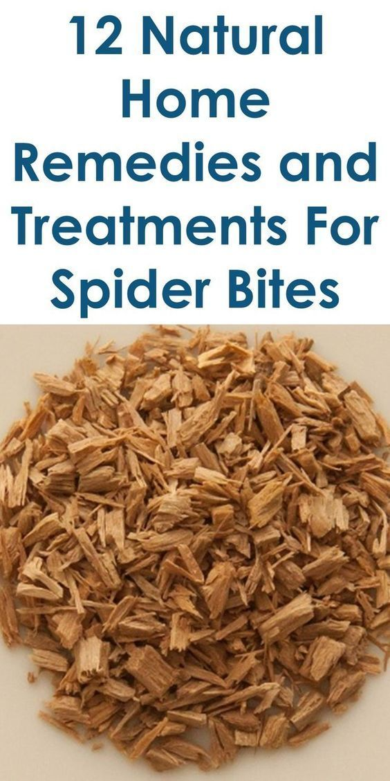 This Article Discusses Ideas On The Following; How To Treat A Spider Bite, Spider Bites Symptoms, Spider Bite Pictures Early Stages, Spider Bite Identification Chart, Non Poisonous Spider Bites, What Does A Spider Bite Look Like At First, Spider Bite Blister, Wolf Spider Bites, Etc. #HomeStagingAdvice