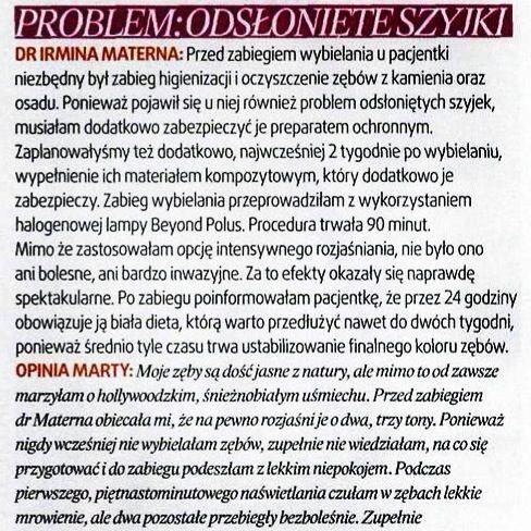 Test zabiegu: #WYBIELANIE Pacjentka: czytelniczka magazynu #URODA Problem: ODSŁONIĘTE SZYJKI