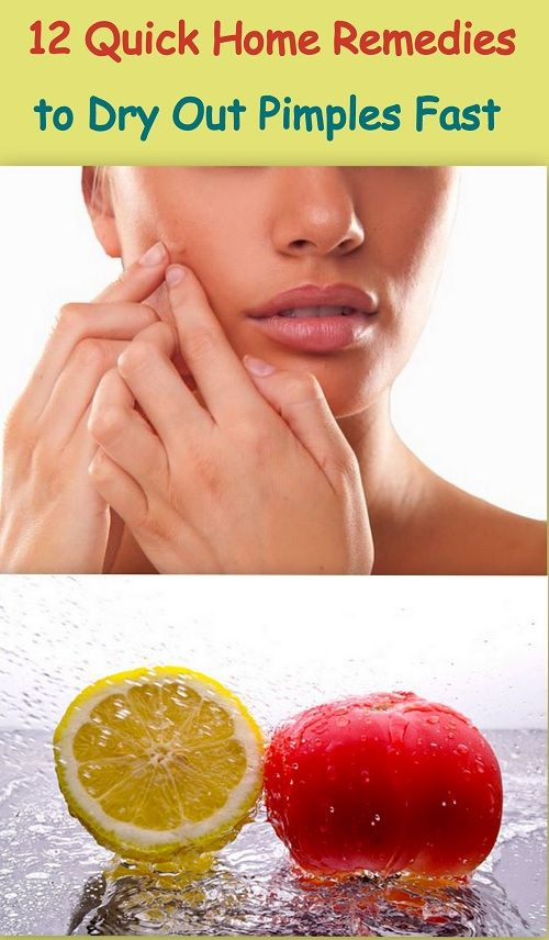 How to dry up a pimple fast very