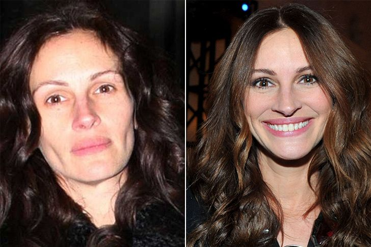 Hallucinant Ces Celebrites Sans Maquillage Sont Meconaissables Page 36 Of 169 Loan Pride Makeup Before And After Julia Roberts Without Makeup