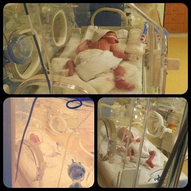 Prematüre Anneleri: 7 hafta fark ile doğan ikizler Zeynep ve Zümra