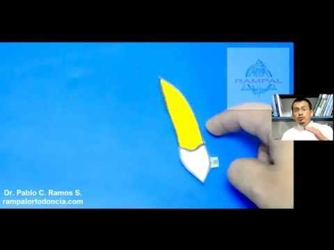 VIDEO: Porque se palatinizan los incisivos cuando los retruimos - YouTube