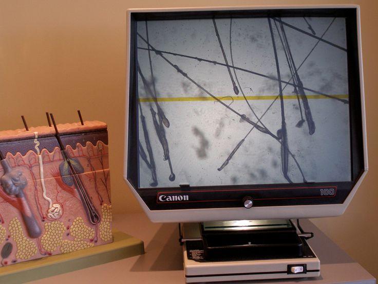 Η τεχνική μεταμόσχευσης μαλλιών FUE πραγματοποιείται με μεμονωμένη εξαγωγή τριχοθυλακίων από τη Ζώνη Σταθερής Τριχοφυΐας (πίσω & πλάγιο τμήμα της κεφαλής) και μεταφύτευση αυτών στη λήπτρια περιοχή της αραίωσης - Από τους ειδικούς της Bergmann Kord. http://tinyurl.com/o296hf8