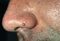 Multiple Endocrine Neoplasia Type 1 Clinical Presentation - A 27-year-old man has telangiectatic, red papules